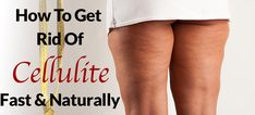How to Get Rid of Cellulite Fast & Naturally – 3 Tactics That Work