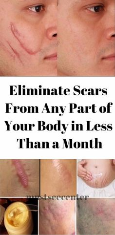 Weird Trick Forces Your Body to Eliminate Acne - . Weird Trick Forces Your Body to Eliminate Acne - Free Presentation Reveals 1 Unusual Tip to Eliminate Your Acne Forever and Gain Beautiful Clear Skin In Days - Guaranteed! Scar Treatment, Skin Treatments, Getting Rid Of Scars, Scar Remedies, Herbal Remedies, Blemish Remedies, Health Remedies, Beauty Tricks, Tips