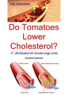goodcholesterollevels what is considered bad cholesterol level? - is there any cholesterol in peanuts? highcholesterol how does a cholesterol test work? can your cholesterol be high from coffee? what will lower your cholesterol? Ways To Lower Cholesterol, What Is Cholesterol, What Causes High Cholesterol, Healthy Cholesterol Levels, Cholesterol Symptoms, Cholesterol Lowering Foods, Cholesterol Range, Eggs Cholesterol, Diabetes