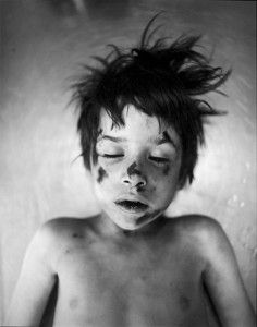 Jeffrey Silverthorne Boy hit by car, 1972-74