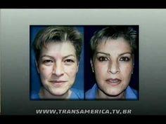 Assista esta dica sobre Tv Transamérica - Blefaroplastia ou cirurgia de palpebra e muitas outras dicas de maquiagem no nosso vlog Dicas de Maquiagem.