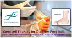 Get the Benefits of Stem cell Therapy for Diabetes Foot India Stem Cell Therapy, Stem Cells, Feet Care, Disorders, Diabetes, Benefit, Told You So, India, Number