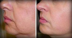 Wraz z wiekiem twoja skóra starzeje się i naturalne efektem tego procesu jest to, że traci ona swoją elastyczność. Na szczęście te dwa proste składniki mogą zwalczać zmarszczki i zwiotczenie skóry. To przepis napina skórę, jednocześnie dając nam młodszy wygląd.