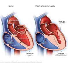 Hypertrophic cardiomyopathy (HCM) is a disease in which the heart muscle (myocardium) becomes abnormally thick (hypertrophied). The thickened heart muscle can make it harder for the heart to pump blood.  Hypertrophic cardiomyopathy often goes undiagnosed because many people with the disease have few, if any, symptoms and can lead normal lives with no significant problems. However, in a small number of people with HCM, the thickened heart muscle  Illustration showing hypertrophic…