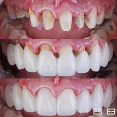 Restorative Dentistry, Easy Dinners, Elegant Dresses, Ceramics, Makeup, Desserts, Blog, Beauty, Teeth