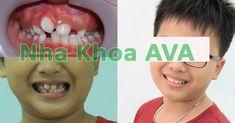 Niềng răng hô, răng thưa, răng mọc lệch không chỉ mang lại một hàm răng đẹp hơn mà còn cải thiện đến khuôn mặt của bạn, giúp bạn thêm tự tin. Nha Khoa AVA Movie Posters, Film Poster, Film Posters