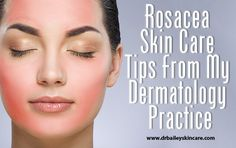 Rosacea skin care tips that helps Dermatologist Dr. Cynthia Bailey's patients minimize rosacea flair ups and maintain rosacea remissions.