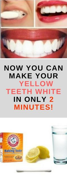 Healthy and white teeth are something that everybody desires. But to achieve this, it can take a lot of effort and time. You can go to the dentists for a whitening procedure, but it will cost you a lot, plus it`s not that healthy for your teeth Teeth Whitening Remedies, Natural Teeth Whitening, Instant Teeth Whitening, Fast Teeth Whitening, Remedies For Tooth Ache, Receding Gums, Belleza Natural, Natural Home Remedies, Oral Health