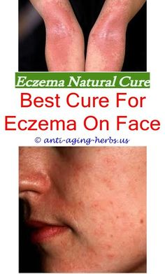 What causes nummular eczema feel free to surf to my for Tattoos and eczema