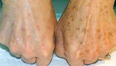 Mit Heilpflanzen Hautflecken behandeln Treat skin spots with medicinal plants Herbal Remedies, Natural Remedies, Age Spot Removal, Brown Spots On Face, Dark Spots, Skin Spots, Healthy Skin, Health And Beauty, Healthy Beauty