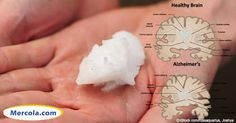 Discover how a tablespoon of peanut butter and an intake of coconut oil may help in the diagnosis and prevention of Alzheimer's disease. http://articles.mercola.com/sites/articles/archive/2013/11/07/peanut-butter-coconut-oil-alzheimers-detection.aspx