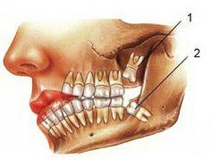 maxillofacial surgeon in Delhi