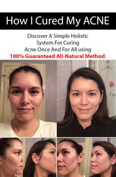 How I Cured My ACNE NATURALLY...Trust me it works
