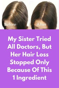 My Sister Tried All Doctors, But Her Hair Loss Stopped Only Because Of This 1 Ingredient - Modern Stop Hair Loss, Prevent Hair Loss, Hair Growth Tips, Hair Care Tips, Reverse Hair Loss, Vitamins For Hair Loss, Male Pattern Baldness, Hair Loss Women, Female Hair Loss