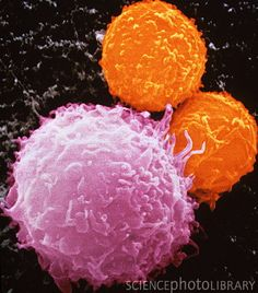 Cancer cell death. Coloured Scanning Electron Micrograph (SEM) of killer T-lymphocytes (orange) beginning to attack a cancer cell (mauve).