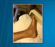 #Jovem picado por cobra em 'rave' na Bahia recebe alta de hospital: 'Não consigo andar' - Globo.com: Globo.com Jovem picado por cobra em…