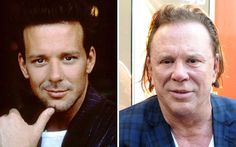 Mickey Rourke then and now. What a shame.