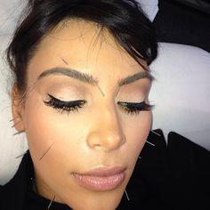 kim kardashian acupunctuur
