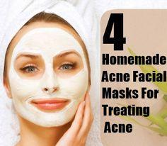 Homemade Acne Facial Masks For Treating Acne