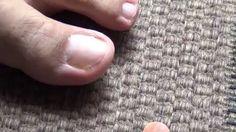 Cómo quitar hongos en uñas de pies y manos en sólo 6 semanas con Dióxido... Home Remedies, Projects To Try, Rings For Men, Health, Hair Care, Medical, Videos, Fitness, Clothing Patches