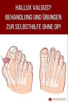 Hallux valgus - relieve pain when the big toe has a life of its own - . - Hallux valgus – relieve pain when the big toe has a life of its own – - Workout Dvds, Tabata Workouts, Wellness Fitness, Health Fitness, Health Benefits, Health Tips, Blog Love, Body Care, About Me Blog