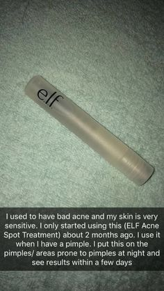 I have this for my pimples and acne prone .- Ich habe dies für meine Pickel und Akne neigenden… – … I have this for my pimples and acne prone … – - Beauty Care, Beauty Skin, Health And Beauty, Beauty Hacks, Diy Beauty, Beauty Ideas, Beauty Guide, Face Beauty, Healthy Beauty