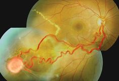 Name: Dr. Biju Raju Ranjini Eye Hospital Description: Angiomatosis Retinae. These hemangioblastomas are often connected to prominent arterioles and venules. It is a feature of Von Hippel-Lindau Syndrome, an inherited disorder characterized by the formation of tumors and cysts that can appear in many different parts of the body. #Ophthalmology #Fundusphoto #Retina