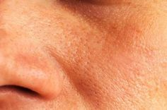 Große Poren zählen zu den häufigsten Hautproblemen von Frauen und Männern, da diese ein ungesundes Hautbild vermitteln und auch häufig das Entstehen von schwarzen Mitessern fördern.