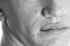 Get rid of acne scars in five simple steps - http://menfash.us/skincare-for-men/get-rid-of-acne-scars/