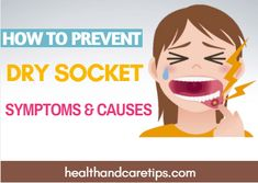 7 Best Dry Socket Symptoms And Home Remedies Images In 2014 Health