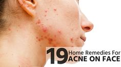 Beauty Tip on 19 Home Remedies for Acne on Face by hira khan. Check out more Natural on Bellashoot. Cystic Acne Remedies, Wrinkle Remedies, Psoriasis Remedies, Dry Skin Remedies, Cellulite Remedies, Natural Acne Remedies, Home Remedies For Acne, Natural Oils For Skin