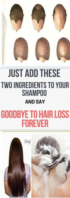 Just Add These Two Ingredients To Your Shampoo And Say Goodbye To Hair Loss Forever..!! Reed thiss!!