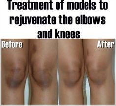 Treatment of models to rejuvenate the elbows and knees