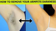 How To Remove Armpits Hair Permanently –Remove Unwanted body Hair –Whiten Dark Underarms Instantly How To Remove Armpits Hair Permanently –Remove Unwanted bo. Natural Hair Removal, Hair Removal Diy, At Home Hair Removal, Laser Hair Removal, Remove Armpit Hair, Armpit Whitening, Best Hair Removal Products, Best Beauty Tips, Unwanted Hair