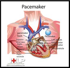 Vvi vs ddd pacemakers pacemakers wired4life pinterest ddd pacemakers pacemakers wired4life pinterest fandeluxe Gallery