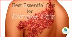 You can Find Relief with these Essential Oils for Shingles Pain! Finding the best essential oils for shingles pain relief can help give you reprieve from this very painful and discomforting disease. Essential Oils For Shingles, Edens Garden Essential Oils, Essential Oils For Pain, Essential Oil Uses, Young Living Essential Oils, Natural Cures, Natural Skin Care, Essential Oils For Inflammation, Doterra Oils