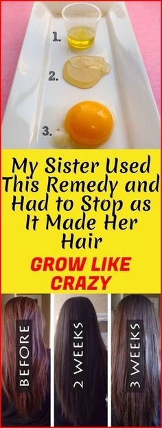 Hair Remedies My Sister Used This Remedy And Had To Stop as it Made Her Hair Grow Like Crazy! Hair Remedies For Growth, Hair Loss Remedies, Thinning Hair Remedies, Help Hair Grow, How To Make Hair, How To Grow Your Hair Faster, Grow Hair Back, Natural Hair Care, Natural Hair Styles