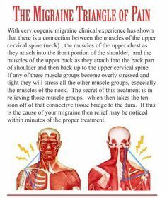Migraine Triangle