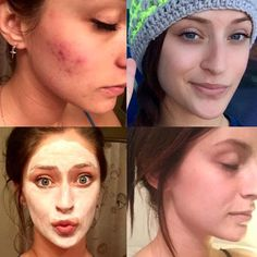 "Annalisa's 4 month Unblemish results are beautiful! I am told all the time "" I'd love it but I just can afford it."" But did you know that Preferred Customers spend on average $40.00 a month or less on their skincare???? Orders last 2 months and you're never obligated to order if it's just not in the budget. It's totally worth your risk guys...its way more affordable than you may think!"