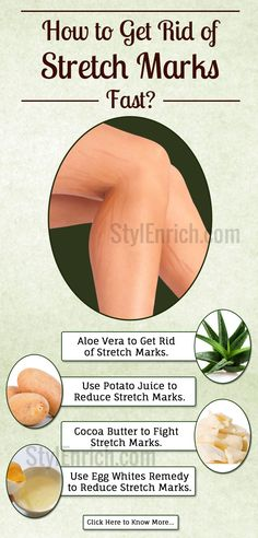 If you are looking forward to get rid of stretch marks, #DIYSkinCare home remedies are your safest bet. They are effective and harmless. There are some easy ingredients that you can find in your kitchen to make some surprisingly effective stretch marks removal remedies.