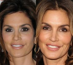 Famous model Cindy Crawford looks youthful at this age of fifty with the help of plastic surgery procedures including botox and collagen fillers. Botox Fillers, Plastic Surgery Procedures, Nobodys Perfect, Famous Models, Cindy Crawford, Brown Hair, The Help, Make Up