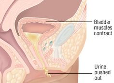 Contraction of Bladder Muscles leading to Urinary Incontinence Urinary Incontinence, Somerset, Muscles, Health, Health Care, Muscle, Salud