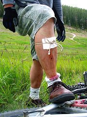 improvised first aid http://thesurvivalmom.com/2010/12/13/medical-kit-lessons-learned/