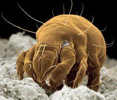 Des insectes au microscope électronique insecte microscope electronique 2 technologie