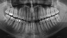W Centrum Stomatologicznym Zakopianka, dysponujemy pracownią radiologiczną wyposażoną w sprzęt rentgenowski najwyższej klasy i najnowszej generacji, który umożliwia natychmiastowe otrzymywanie wyników badań w warunkach pełnego bezpieczeństwa pacjenta. Dzięki temu jesteśmy w stanie błyskawicznie i bardzo dokładnie uzyskać kluczowe informacje, które wpłyną na harmonogram leczenia. #dentistry