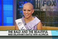 Miss Delaware was a semi-finalist in the 2011 Miss America pageant.  She wore a wig during competition but has been very open about having the condition alopecia which has left her completely bald.