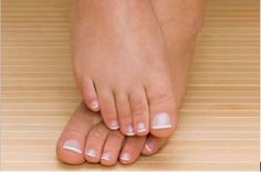 The biggest issue with treating toenail fungus is its resilience.  http://WWW.laserawaytoenailfungus.com/