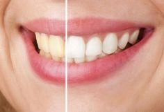 5 métodos naturales para blanquear los dientes en minutos - Mejor con Salud