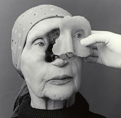 Woman with prosthesis