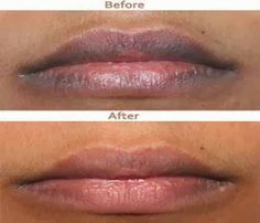 Pink Lips Please – How to Get Rid of Dark Lips Naturally   Beauty and MakeUp Tips: